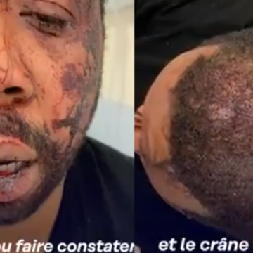 Francia: Brutal golpiza de policías a productor negro porque este olvidó su mascarilla